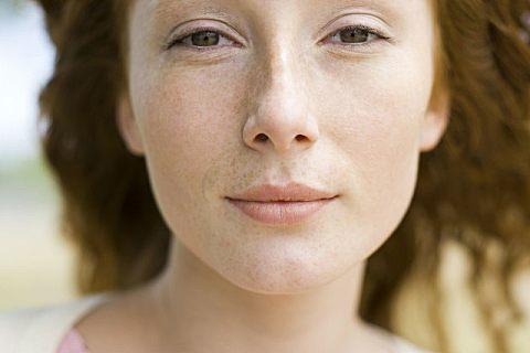 祛斑的偏方有哪些?皮肤为什么会长斑?