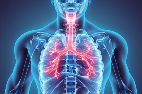 支气管扩张是什么症状