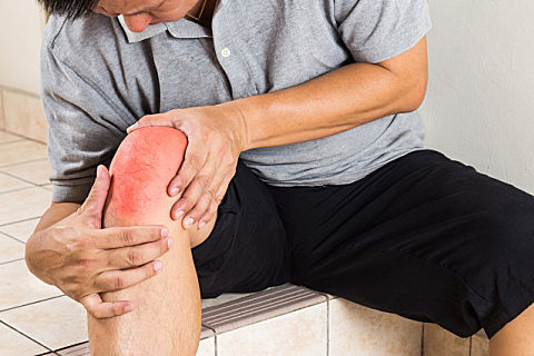 怎么治疗关节炎膝盖疼