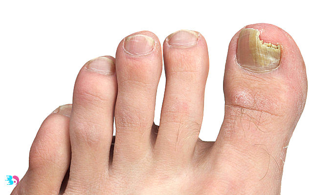 指甲灰白色是什么原因?指甲灰白色有什么危害?