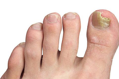 指甲灰白色是什么原因