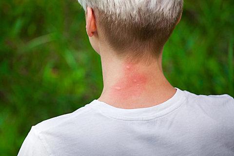 玫瑰糠疹什么症状