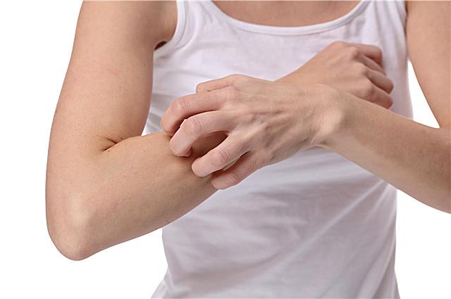 银屑病有什么症状?银屑病的危害