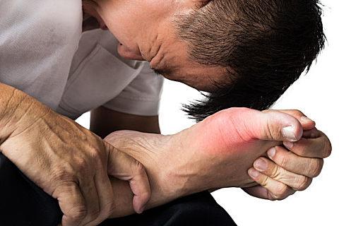 痛风消肿止痛最快方法