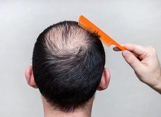 植发就能缓解秃头了吗?植发也有这些危害