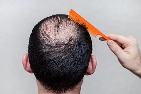 植发就能缓解秃头了吗
