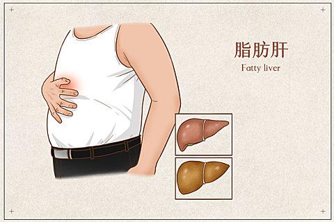 老年人脂肪肝有什么表现