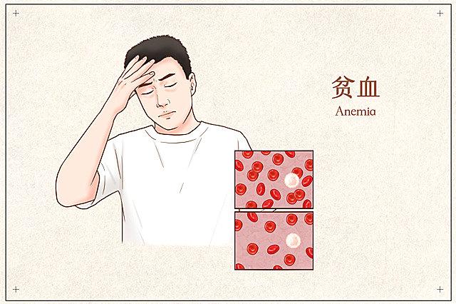 男性贫血有什么症状