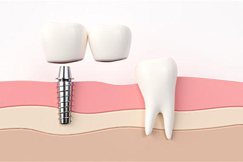 种植牙能用多久?种植牙材料很多种你都了解吗